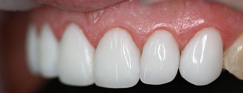 красивые зубы стоматология фото