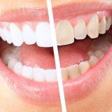 отбеливание зубов zoom 4 цена