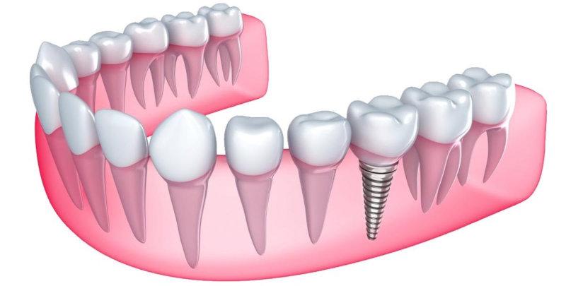 Имплантация и протезирование зубов в Москве
