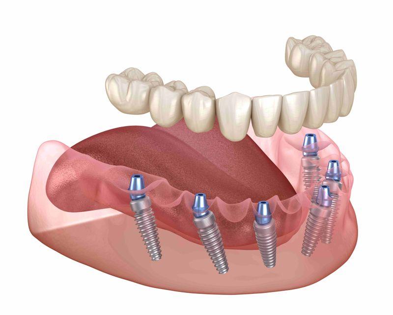 Имплантирование зубов